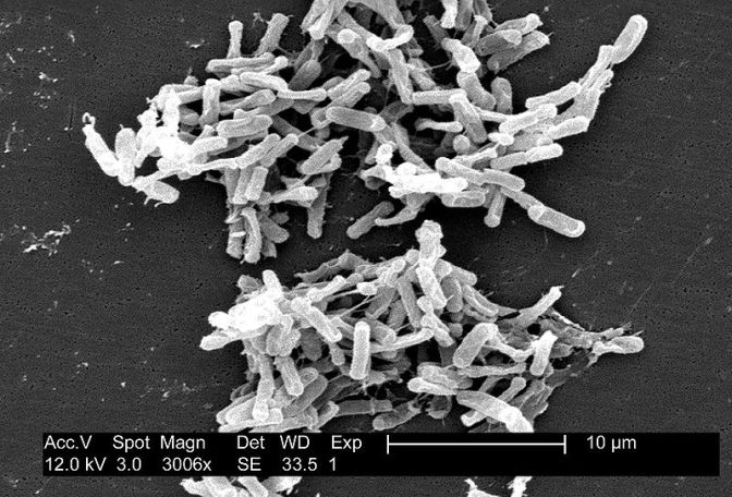 800px-Clostridium_difficile_01